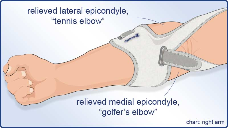 Masalo Cuff MED helps against tennis elbow and golfer's elbow