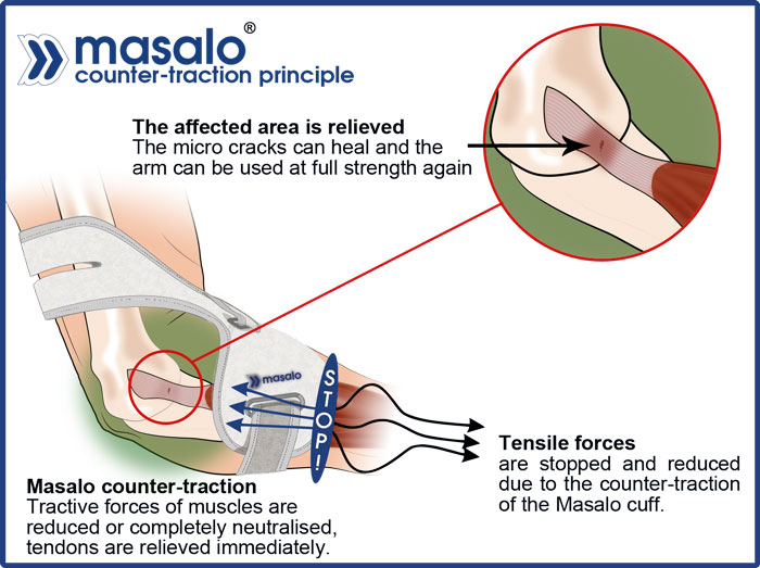 Masalo counter-traction principle against tennis elbow, golfers elbow, mouse arm, epicondylitis which immediately reduces the tractive forces
